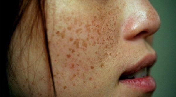Пигментные пятна на коже – примета возраста