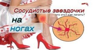 Лечение звездочек на ногах народными средствами